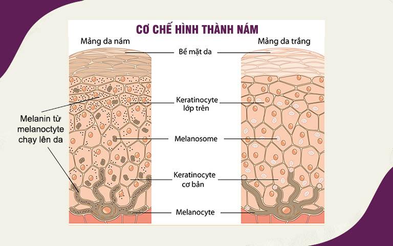 Cơ chế tăng sắc tố da