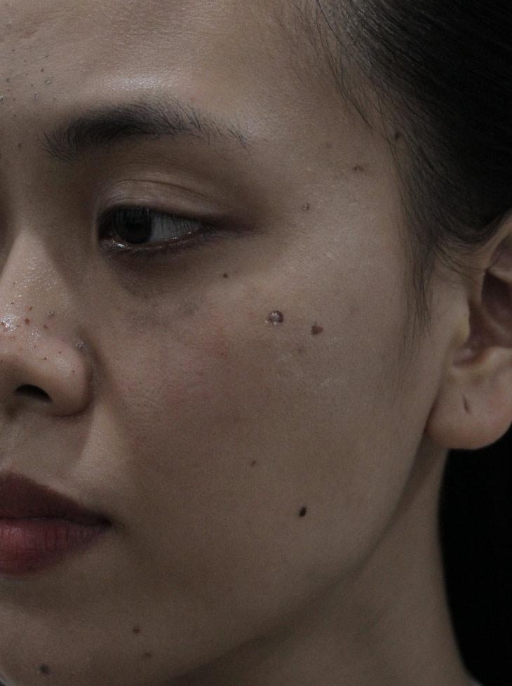 Dù đã được điều trị nhưng tình trạng mụn của chị Trang cũng không thuyên giảm nhiều