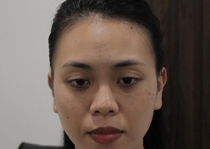 Làn da đen sạm, sần sùi khiến chị Trang luôn cảm thấy tự ti, buồn bã