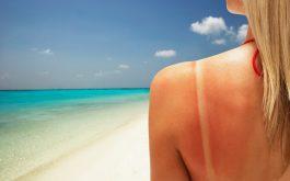 Làn da bị sạm nắng khiến bạn mất tự tin trong giao tiếp