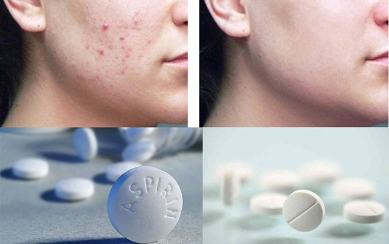 Mặt nạ thuốc Aspirin giúp giảm đau, tiêu viêm hiệu quả