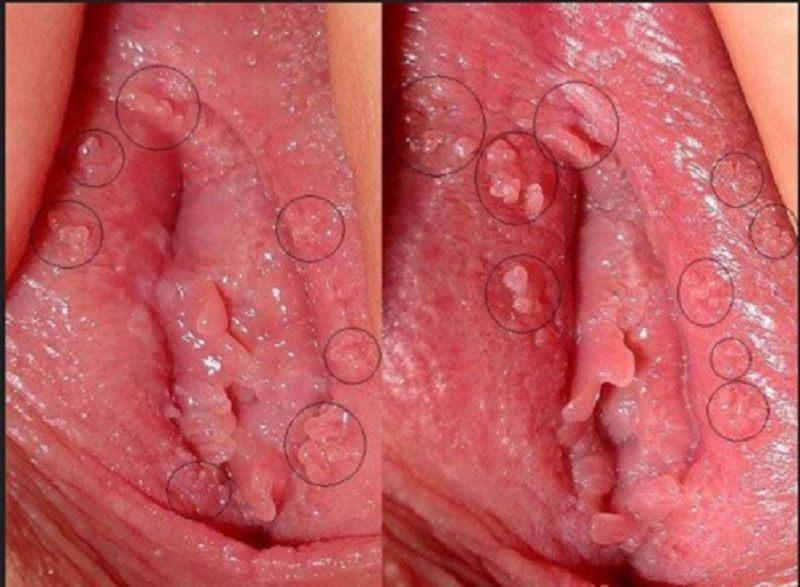 Mọc mụn bọc ở môi lớn vùng kín có thể do viêm nang lông, viêm âm đạo hay các bệnh xã hội
