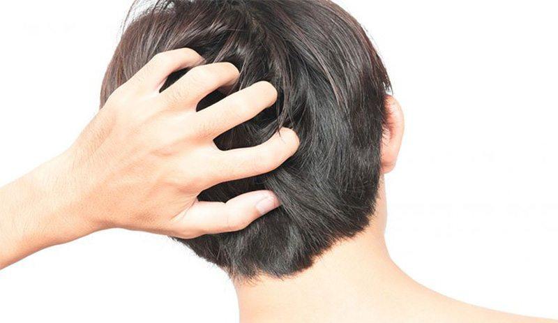 Giữ vệ sinh da đầu sạch sẽ giúp hạn chế tình trạng viêm chân tóc