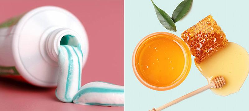 Cách trị nám da tiết kiệm băng kem đánh răng, mật ong