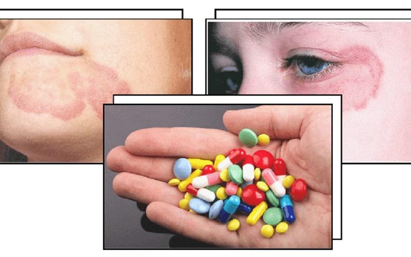 Thuốc Tây y có thể điều trị hắc lào nhanh chóng
