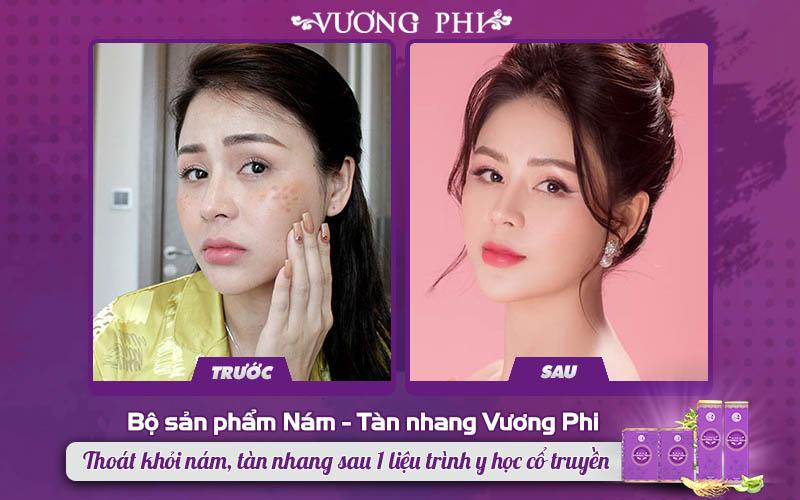 Diễn viên Lương Thu Trang đã lấy lại làn da sáng đẹp sau 1 liệu trình Vương Phi