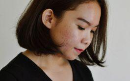 Da dễ bị tổn thương sau viêm da