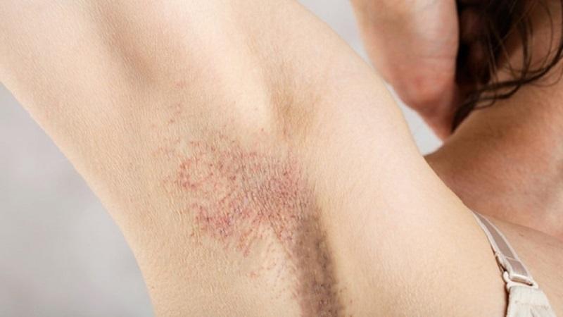 Viêm nang lông nách khiến vùng da dưới cánh tay sần sùi