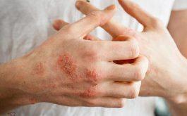 Tại vùng da bị tổn thương, tránh cào gãi vì sẽ khiến bệnh lây lan
