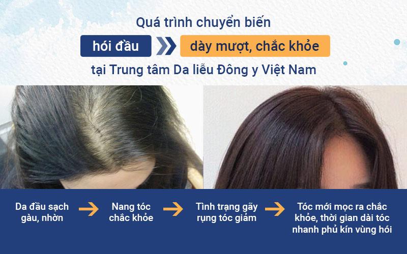 Giải pháp hỗ trợ điều trị rụng tóc của Viện Da liễu Hà Nội - Sài Gòn đem lại quá trình hồi phục nhanh chóng