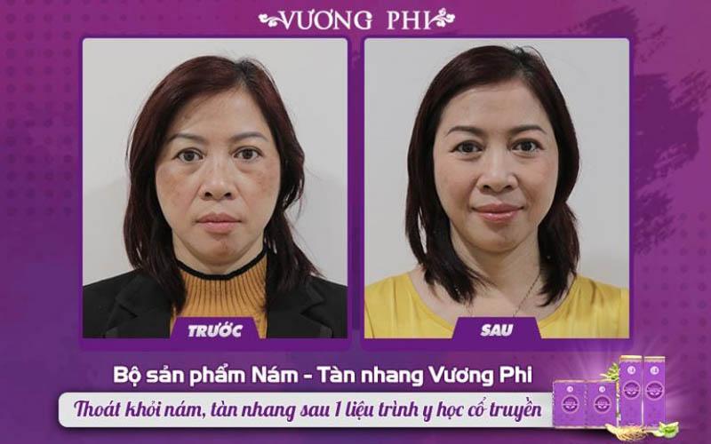 Cô Kim Hoa (giáo viên, 50 tuổi) ghi nhận tình trạng nám thuyên giảm 80% sau 2 tháng sử dụng Bộ sản phẩm Vương Phi