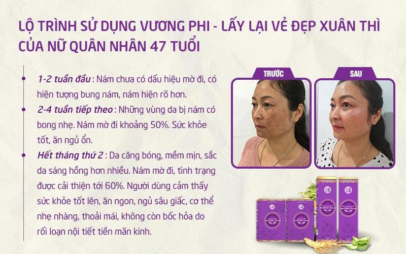 Thiếu tá Tạ Thị Vân (47 tuổi) và hành trình khắc phục nám hỗn hợp tại Trung tâm Da liễu Đông y Việt Nam